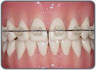 clear braces | braces for teeth | ceramic braces