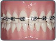 stainless steel braces for teeth