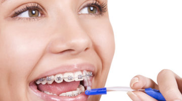 cost of braces